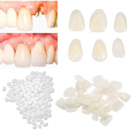 Amazon Com Brige Temporary Tooth Repair Kit For Fix Filling The Missing Broken Tooth And Gaps Moldable Fake Teeth Veneers And Thermal Beads Replacement Kit Artfifical Teeth Beauty