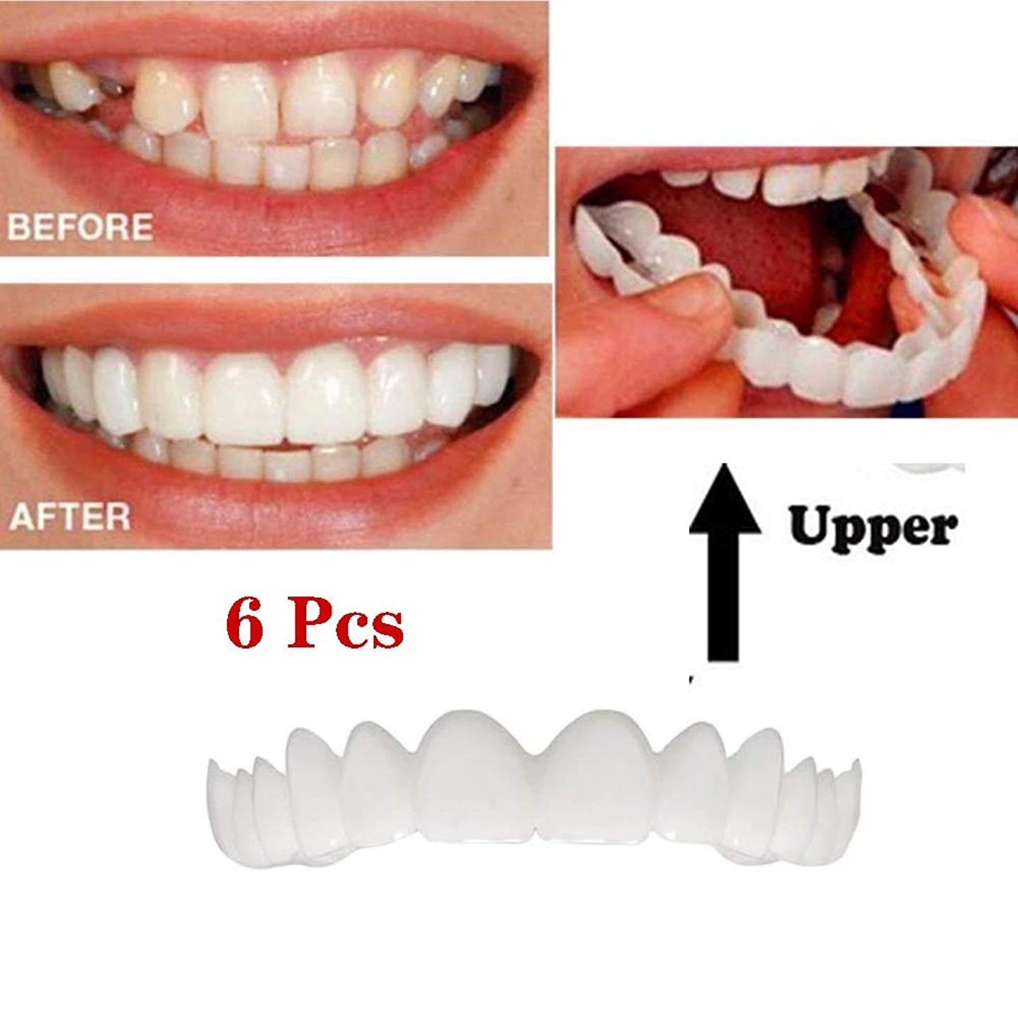 詳細にトーク独裁者義歯口腔ケア歯ホワイトニング義歯口腔ケアアッパーブレース一時的な化粧品歯義歯 - 6本