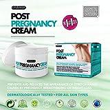 Zoom IMG-1 ardaraz la crema antismagliature gravidanza