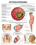 Hyperlipidemia e chart: Full illustrated