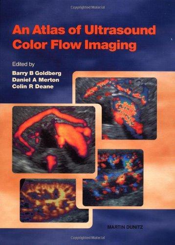 An Atlas of Ultrasound Colour Flow Imaging
