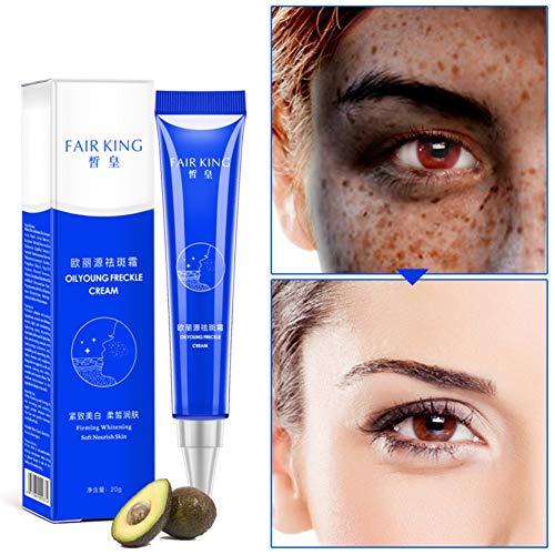 Allbestaye Whitening Cream Gesicht Freckles Removal Cream Dunkle Flecken Creme gegen Pigmentflecken Altersflecken Hyperpigmentierung (1pc)
