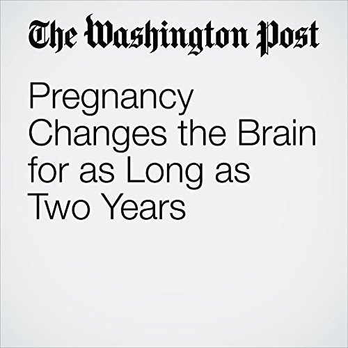 Pregnancy Changes the Brain for as Long as Two Years  audiobook cover art