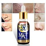 SHILLS Mandelic Acid Face Serum- Anti Acne & Scar Face Serum. With Vitamin