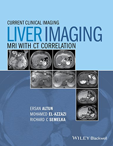 Liver Imaging: MRI with CT Correlation: 1 (Current Clinical Imaging)