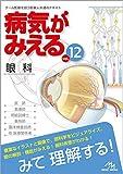 病気がみえる vol.12 眼科
