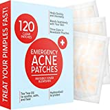 Acne Patches (120 Pack)