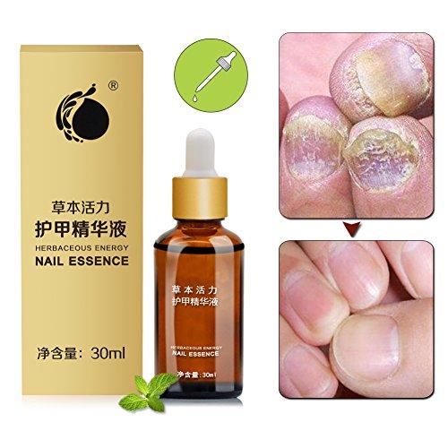 Nagelpolitur,Nagelpflegeöl,Nagelpflege pflegend Für Fuß und Hand,(30ml)