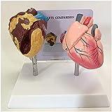 LBYLYH Modelo de corazón Modelo anatómico de órganos Humanos - Comparación Modelo de Fumar corazón y corazón Normal - Modelo de corazón anatómico médico - para el Estudio de publicación