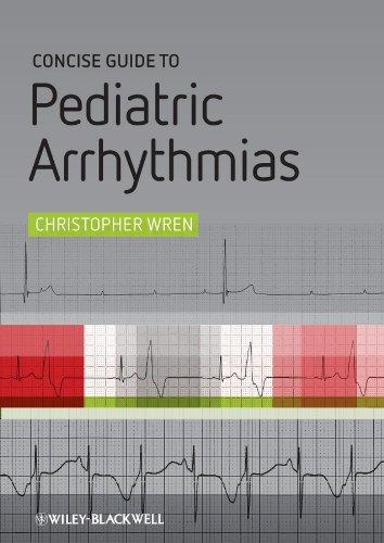 Concise Guide to Pediatric Arrhythmias (English Edition)