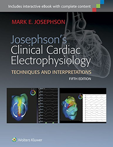 Xchebook josephsons clinical cardiac electrophysiology by mark e easy you simply klick josephsons clinical cardiac electrophysiology book download link on this page and you will be directed to the free registration fandeluxe Choice Image