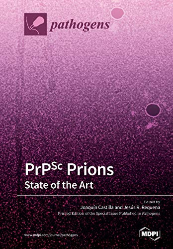 PrPSc prions: State of the Art