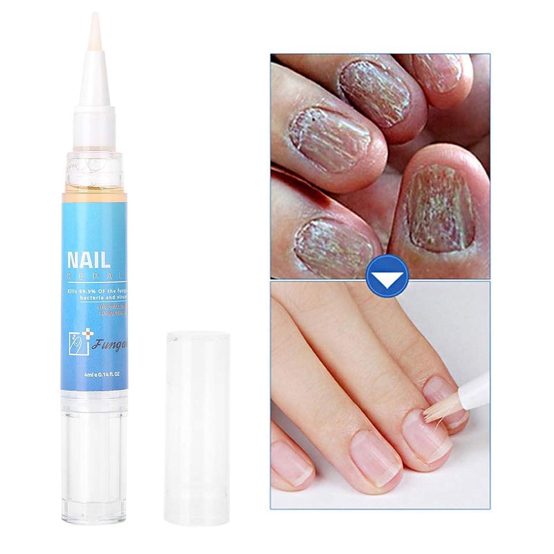 エーカー殺す偏心ネイルケアクリーム 植物抽出物 副作用なし爪の代謝を促進 新しい爪の成長を促進