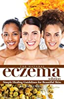 The Natural Eczema Solution: Simple Healing Guidelines for Beautiful Skin.