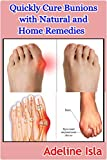 Quickly Cure Bunions with Natural and Home Remedies