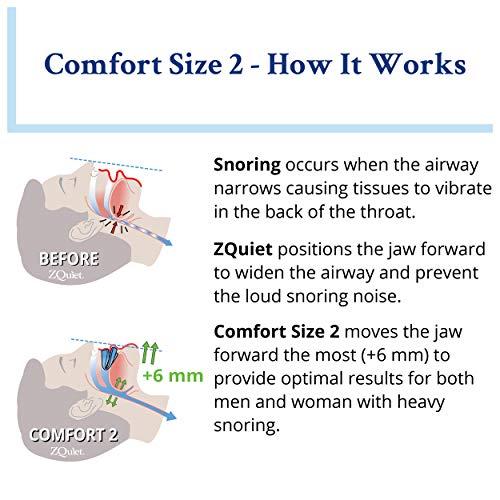 ズィークヮィェットZQuiet米国製サイズ2顎前方移動6mm保管ケース付きいびきマウスピースいびき対策用品いびきグッズいびき軽減イビキ睡眠快眠いびきサポーター(2)