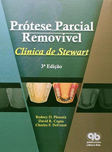 Prótese Parcial Removível. Clínica de Stewart