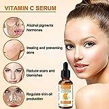 Zoom IMG-1 siero vitamina c 20 per