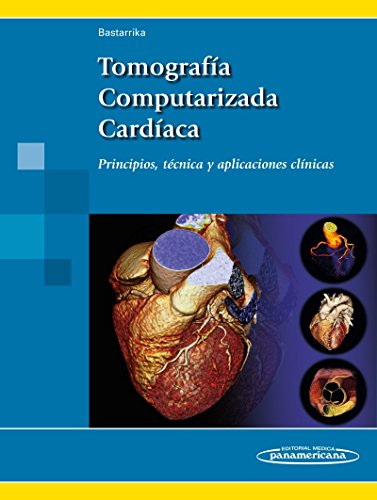 Tomografia computarizada cardiaca: Principios, técnica y aplicaciones clínicas