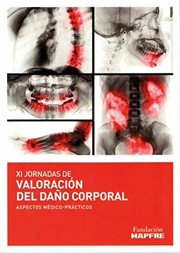 Valoración del daño corporal. Aspectos médico- prácticos