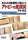 あらゆる診療科で役立つアトピー性皮膚炎アトラス〜典型疹から間違えやすい皮疹まで243点の症例写真で「これってアトピー?」に答える!