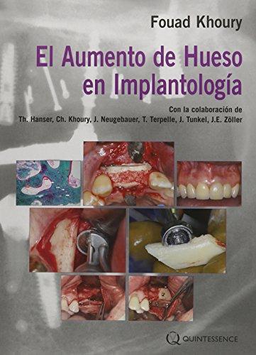 Download El Aumento de Hueso en Implantología 8489873445