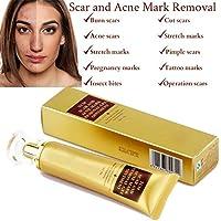 SkinRosa Crema para eliminar eficazmente el acné y las cicatrices como quemaduras, cortes, marcas de estiramiento de embarazo, manchas de acné, Elimina las cicatrices nuevas y antiguas