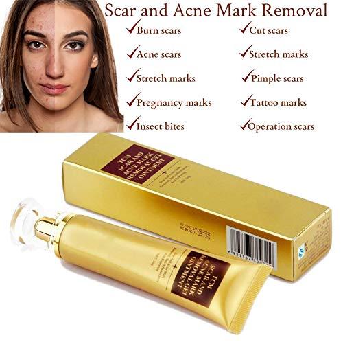 SkinRosa Crema para eliminar eficazmente el acné y las