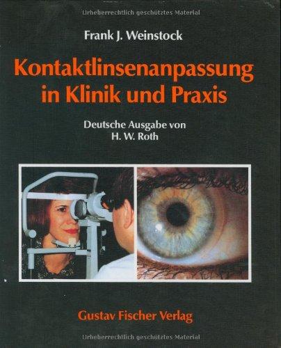 Kontaktlinsen-Anpassung in Klinik und Praxis