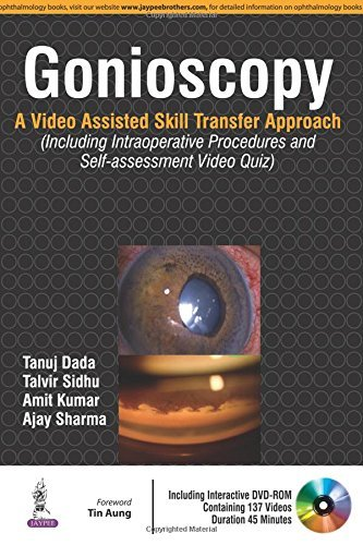 Gonioscopy: A Video Assisted Skill Transfer Approach (Including Intraoperative Procedures and Self-assessment Video Quiz) by Tanuj, M.D. Dada Talvir, M.D. Sidhi Amit Kumar Ajay Sharma(2016-03-31)