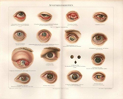 Augenkrankheiten, Grüner Star, Hagelkorn u.a. - Antiquarische Lithografie (Sammlerstück) von 1893