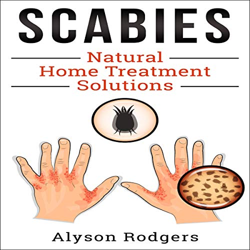 Scabies Natural Home Treatment Solution audiobook cover art