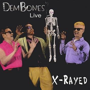 X-Rayed