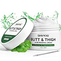 Butt & Thigh Anti Acne Cream,Body Acne Cream,Removing Acne,Pimples and Ingrown Hairs for Buttocks,Thigh,Back and Chest Area,Acne Spot and Cystic Acne Treatment,Moisturizing and Repairing Skin
