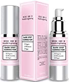 Dark Spot Corrector for Face. Dark Spot Remover Cream for Body, Face, Neck, Hands 1 oz
