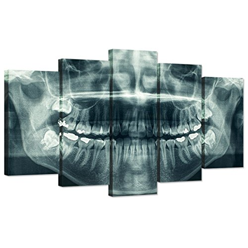iHAPPYWALL Modern 5 Panel Canvas Wall Art X-Ray Dental Tooth Oral Panoramic The Picture Teeth Decay Print for Dental Room Stretched and Framed for Living Room Ready to Hang