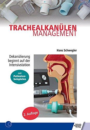 Trachealkanülenmanagement: Dekanülierung beginnt auf der Intensivstation