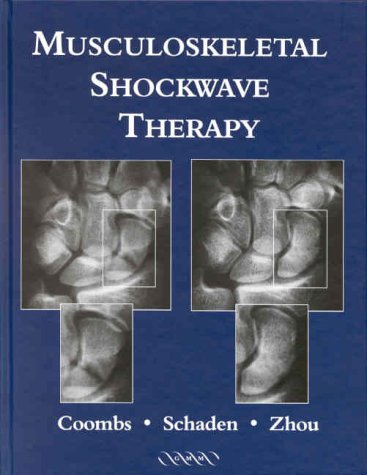 Shockwave Medical 0001642545/