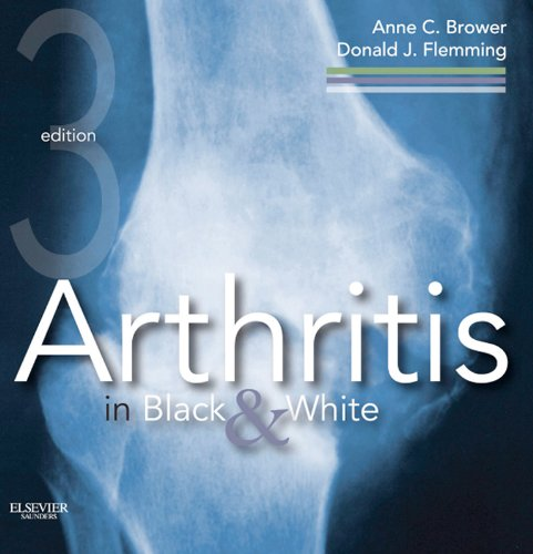 Arthritis in Black and White E-Book: Expert Consult - Online and Print (English Edition)