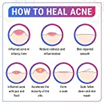 Acne treatment products GENIUS Acne Spot Treatment Serum for Acne Prone Skin, Mild, Moderate,
