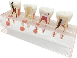 Educational Model Dental Oral Cavity Pulp Disease Treatment Model - Teeth Anatomical Model - Dental Teeth Model - Show Tee...