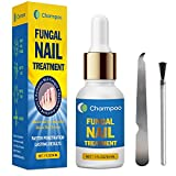 Best Nail Fungus Treatments - Toenail Fungus Treatment - Fungal Nail Treatment Review