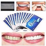 28 bandes blanchiment dentaire - blanchiment des dents-Qualité pro - Donnez un coup d'éclat aux dents-14 bandes en haut et 14 bandes en bas, traitement 14 jours.