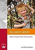 Das andere Lächeln: Babys mit Lippen-Kiefer-Gaumenspalte. Ein Buch (nicht nur) für Eltern