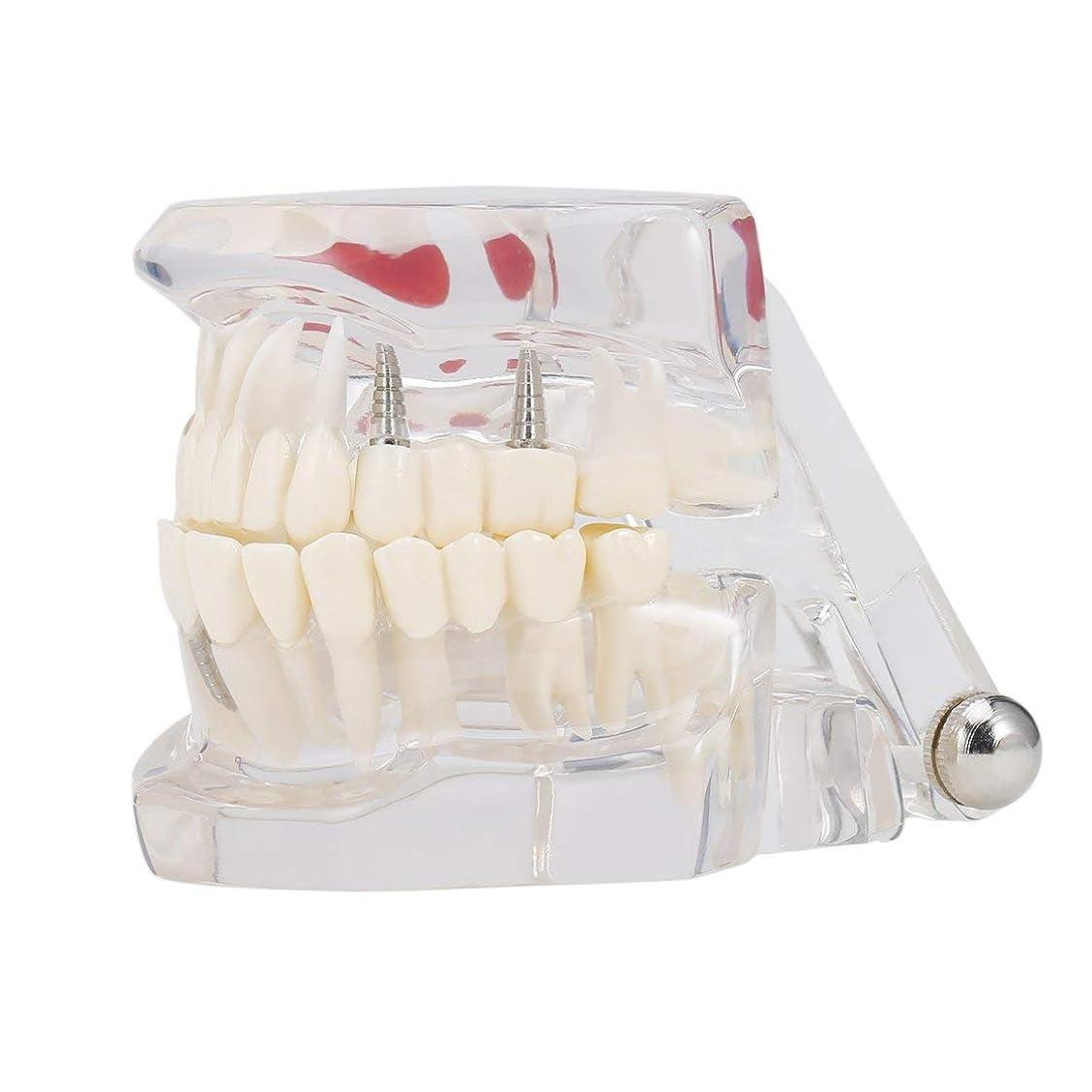 首光沢グリース専門の取り外し可能な偽の歯の歯の病気のモルデルの歯科インプラント回復表示医院の病院の教育使用 (色:黒)(Rustle666)