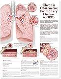Chronic Obstructive Pulmonary Disease Anatomical Chart