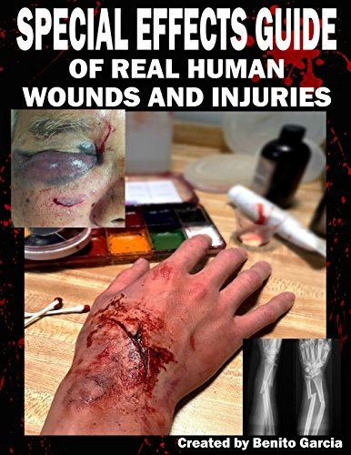 Special Effects Guide Of Real Human Wounds and Injuries: Special Effects Guide Of Real Human Wounds and Injuries