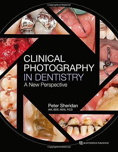 Clinical Photography in Dentistry (A New Perspective)