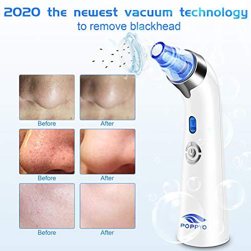 Poppyo Blackhead Remover Pore Vacuum