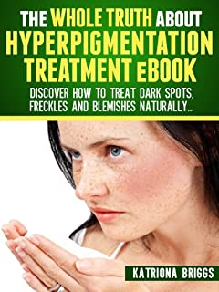 The Whole Truth about Hyperpigmentation Treatment eBook: